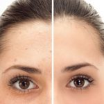 blandford-cosmetic-clinic-pigmentation-removal-ipl